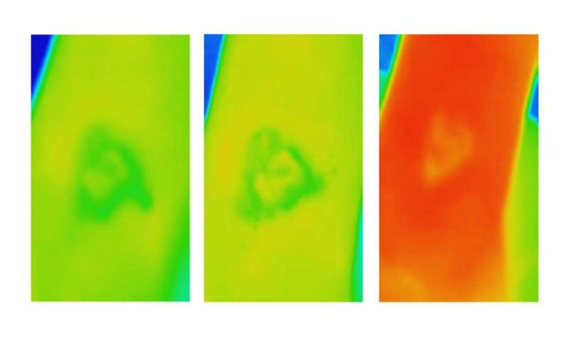 Thermal imaging offers early alert for chronic wound care