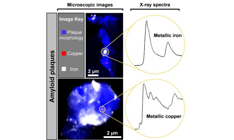 Unusual kind of copper and iron found forming in brains of Alzheimer's patients