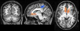 The network in our heads: What our brains have in common with the internet