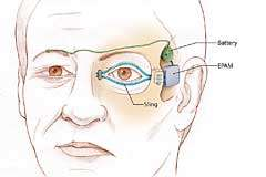 Artificial muscles restore ability to blink, save eyesight