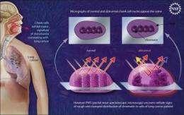 Cheek swab may detect lung cancer