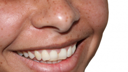 Dentists could soon have an additional tool to help ward off tooth decay