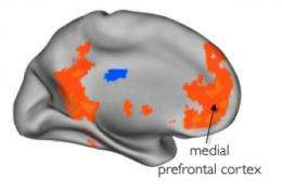 Imaging study shows brain responds more to close friends