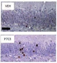 Mental decline thwarted in aging rats