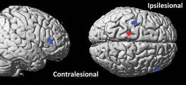 Noninvasive brain stimulation helps improve motor function in stroke patients