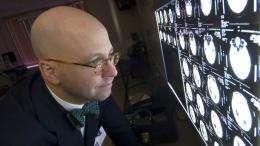 Study Indicates Extracranial Internal Carotid Artery Stenosis a Factor in 38,000 Strokes