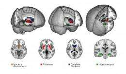 Video gamers: Size of brain structures predicts success