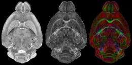 Mouse brain seen in sharpest detail ever