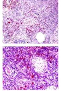 Tumors use enzyme to recruit regulatory T-cells and suppress immune response
