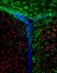 Researchers uncover new links between stem cells, aging and cancer