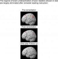 Brain Underactivation