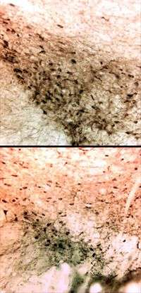 New drug may help rescue the aging brain