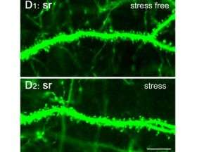 Short-term stress can affect learning and memory