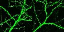 Traffic jam in brain causes schizophrenia symptoms