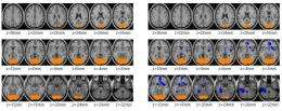 Brain Scan Study Shows Cocaine Abusers Can Control Cravings