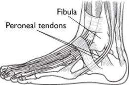 Chronic ankle pain may be more than just a sprain