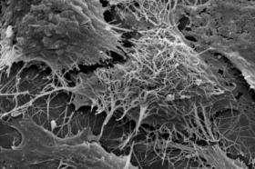 New study identifies how ebola virus avoids the immune system