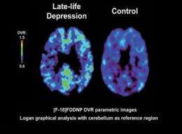 Imaging technique IDs plaques, tangles in brains of severely depressed older adults