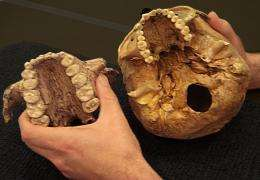 No nuts for 'Nutcracker Man': Early human relative apparently chewed grass instead