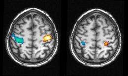 Brain imaging study: A step toward true 'dream reading'