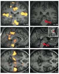 Brain waves control the impact of noise on sleep