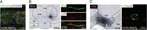 The brain on drugs: Defining the neural anatomy and physiology of morphine on dopamine neurons