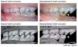 Stem cells grow fully functional new teeth