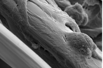 Lasers light the path of neuron regeneration
