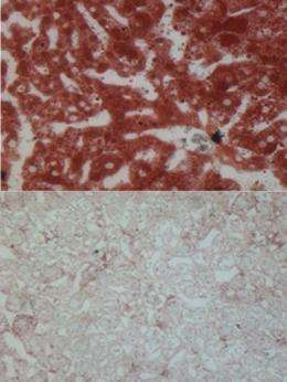 Molecules work the day shift to protect the liver from accumulating fat