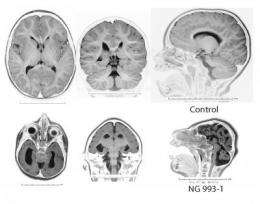 Mutations in single gene may have shaped human cerebral cortex