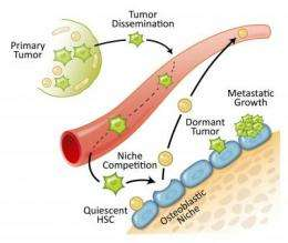 Prostate cancer spreads to bones by overtaking the home of blood stem cells