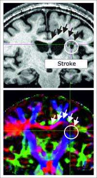 Regeneration after a stroke requires intact communication channels between the two halves of the brain