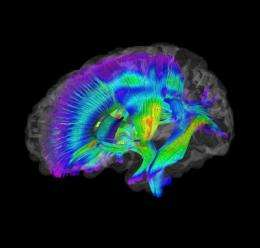 Brain-imaging differences evident at 6 months in infants who develop autism