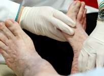 Specialists must work together to prevent leg amputations, urge experts