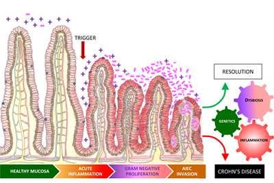 Inflammation drives Crohn's disease, says study