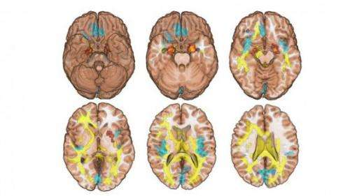 Siblings' brain scans could hold the key to drug addiction