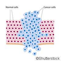 Scientists uncover cells at the origin of basal cell carcinoma