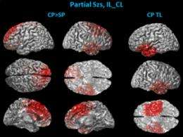 University of Minnesota engineering researchers discover new non-invasive method for diagnosing epilepsy