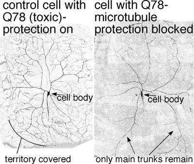 Nerve pathway for combating axon injury and stress may hold benefits for individuals with neurodegenerative disorders