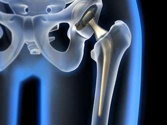 Encouraging news for hip surgeries