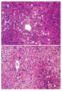 Liver fat gets a wake-up call that maintains blood sugar levels