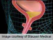 Low-dose duloxetine deemed safe for urinary incontinence