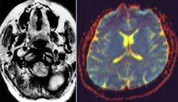 Mapping neurological disease