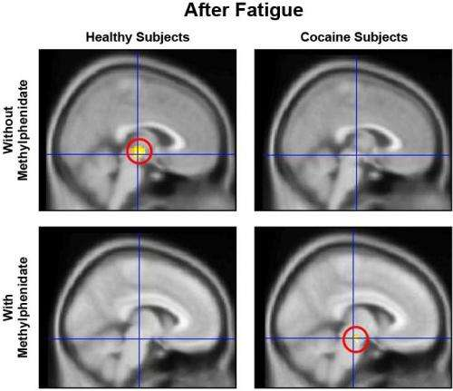 Mental Fatigue Impairs Brain Function, Motivation in Drug-Addicted Individuals