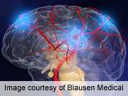 New drug bests standard treatment for certain strokes