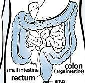 New drug might help treat irritable bowel syndrome