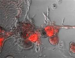 New point of attack for breast cancer with poor prognosis