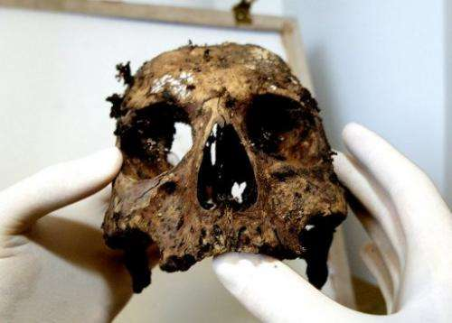 Pathologist Philippe Charlier with the skull of Agnes Sorel, French King Charles VII's lover