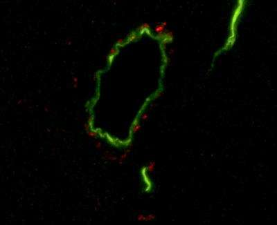 Salk study finds diabetes raises levels of proteins linked to Alzheimer's features