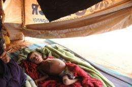 Solving the problems of diarrhoea, worms and malnutrition will do good for more of the world's poor, the think tank said